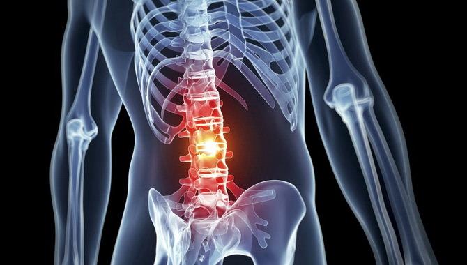 Лечение остеохондроза медовым массажем