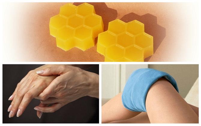 Лечение воском пчелиным заболеваний суставов