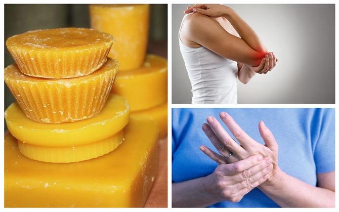 Лечение заболеваний суставов пчелиным воском